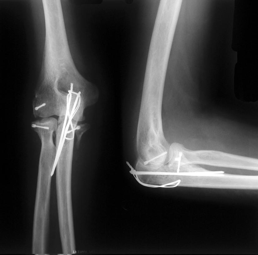 Obr. 7b: RTG dokumentácia 41ročnej pacientky so zlomeninou hlavičky radia, humeru, olekranu a proc.coronoideus. Stav po ťahovej serkláži olekranu a fixácií hlavičky radia, humeru, proc .coronoideus Herbertovou skrutkou