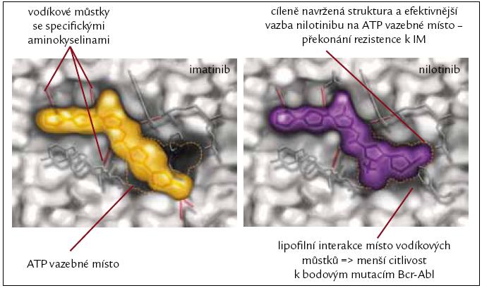 Rozdíly ve vazebných místech jsou příčinou účinnosti nilotinibu i v případě rezistence k imatinibu.