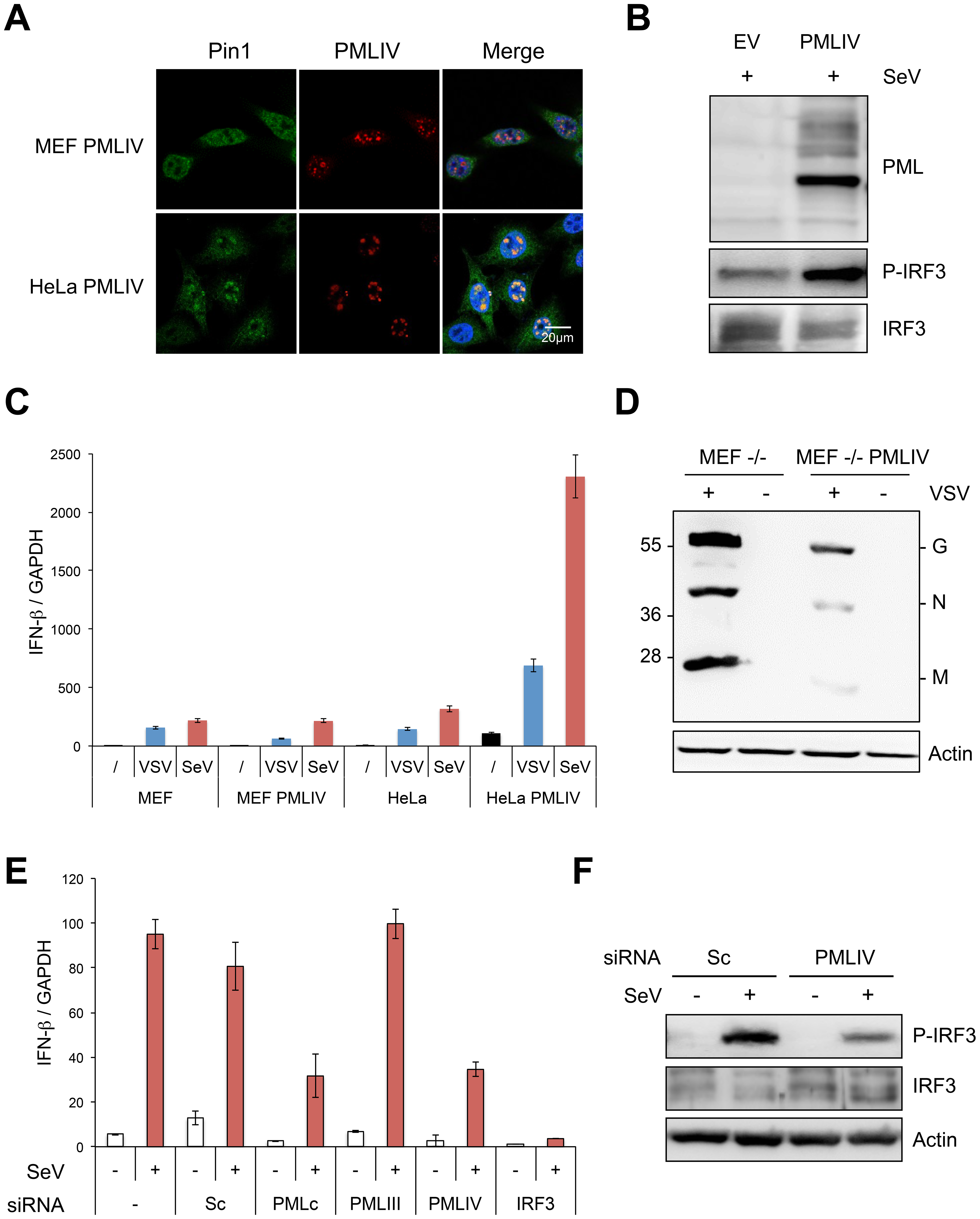 PMLIV is responsible for Pin1 recruitment in PML NBs, enhanced P-IRF3 and IFN-β synthesis upon viral infection.