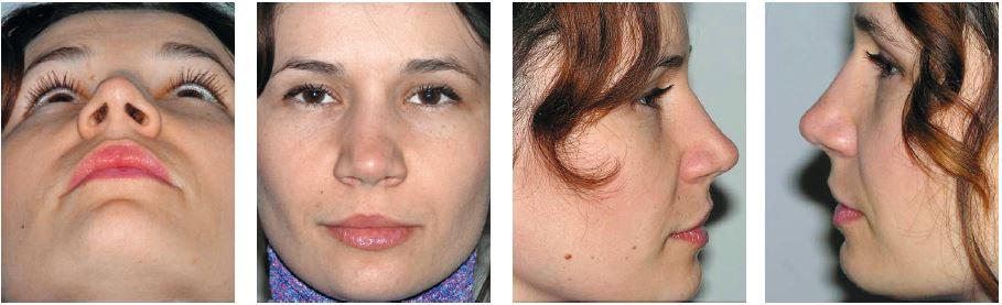 Pacientka z obr. 16 po korekcii vonkajšieho nosa s osteotómiou, podložením dorza a zúžením nosa.