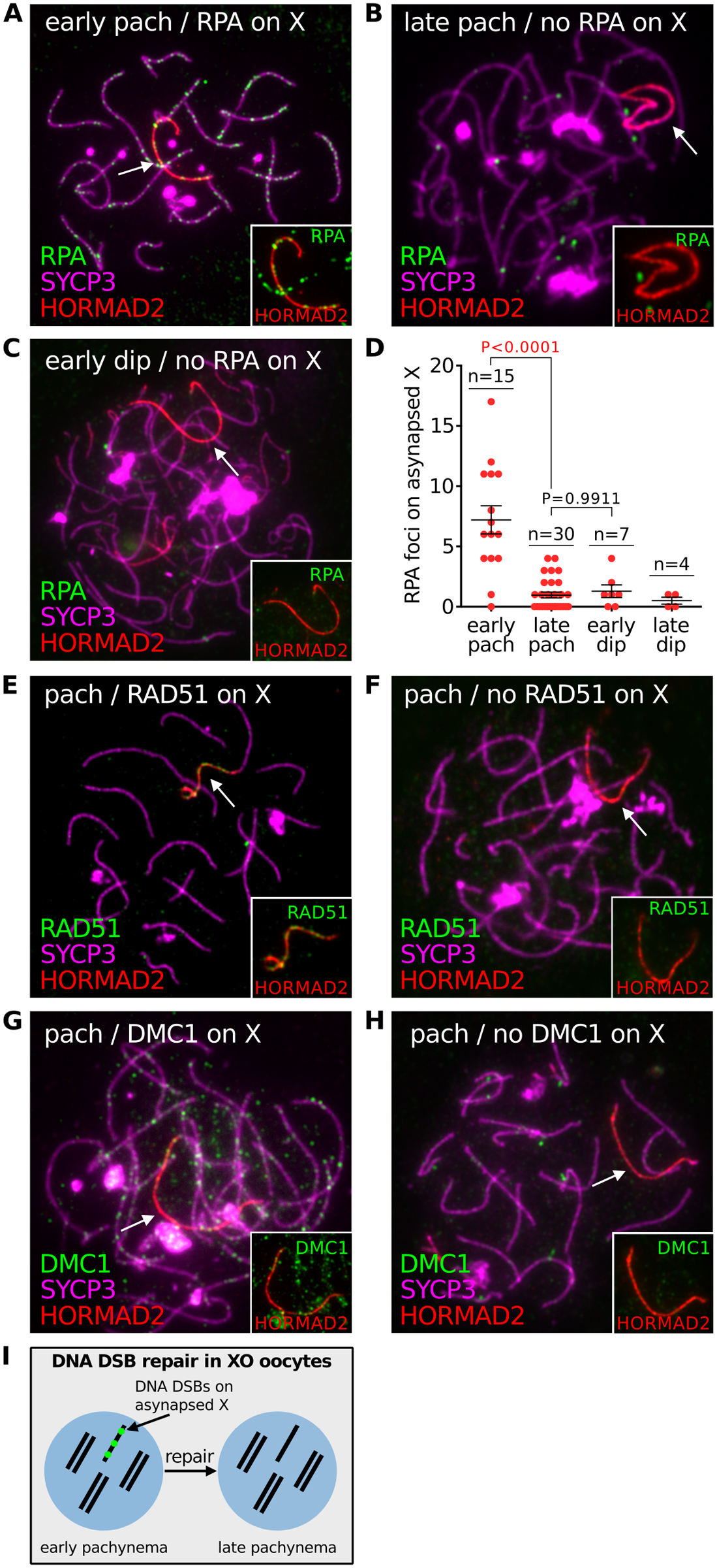 DNA DSB repair marker RPA does not persist on asynapsed chromosomes in XO female mice.