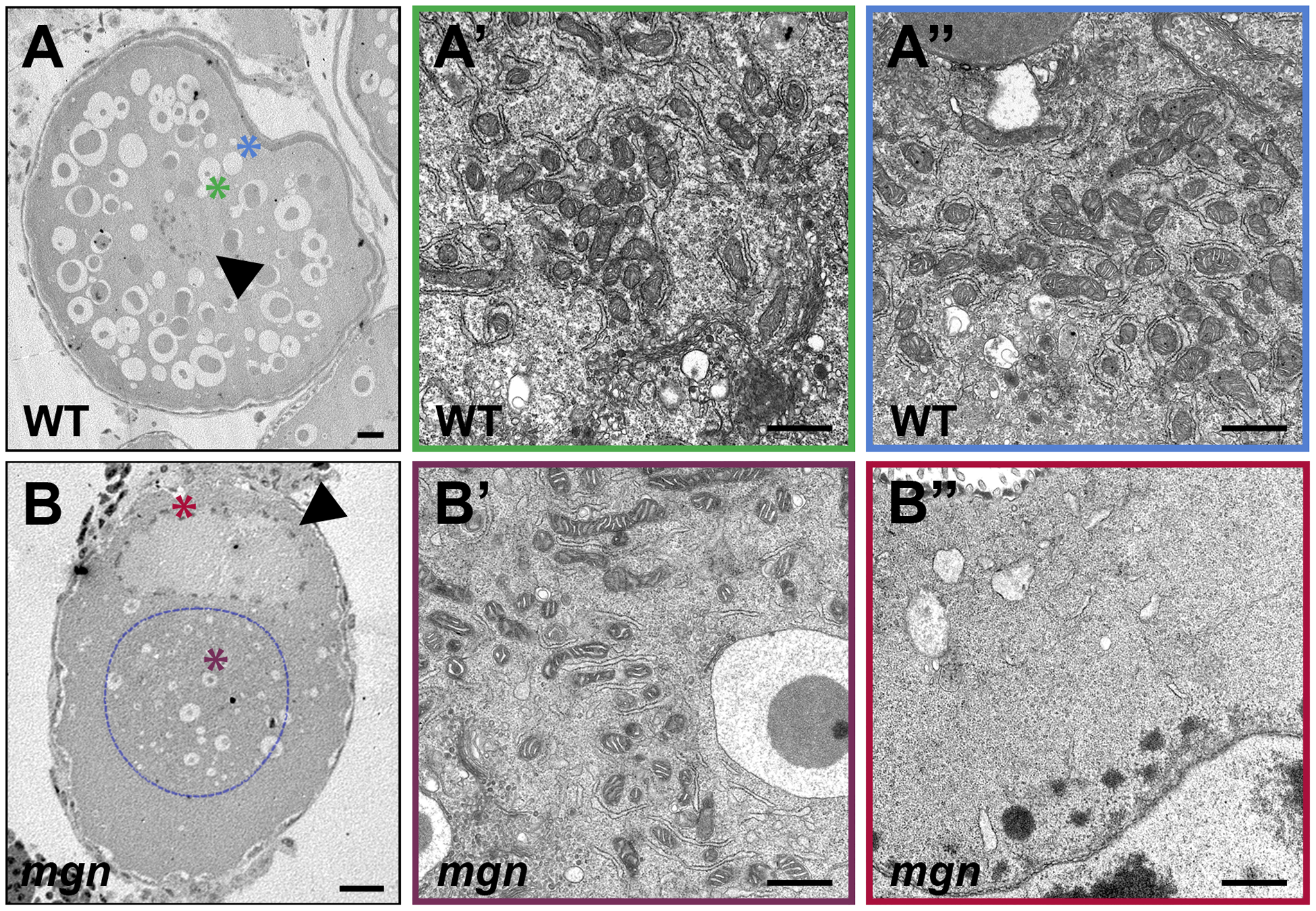 ER and mitochondria are absent from the periphery of stage II <i>mgn</i> mutant oocytes.