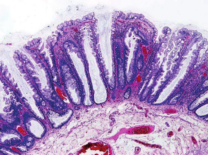Sesilní serrated adenom s abnormálními kryptami – přehled (HE, objektiv x10).