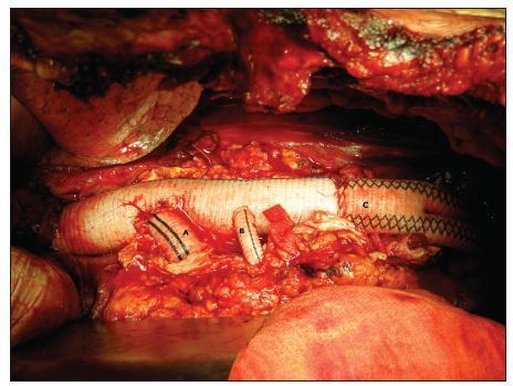 Náhrada TAAAvětvenou protézou v kombinaci s náhradou pánevních tepen bifurkační protézou (A– 14 mm společné raménko pro AMS a TC, B – 10 mm raménko pro arteria renalis sinistra [arteria renalis dextra reimplantována samostatně na zadní straně protézy], C – bifurkační protéza) Fig. 11. TAAAreplacement using branched prosthesis, in combination with the pelvic arteries replacement using bifurcation prosthesis (A – 14 mm common arm for superior mesenteric artery and coeliac trunk, B – 10 mm arm for left renal artery [right renal artery, on its own, reimplanted to the back of the prosthesis], C – bifurcation prosthesis)