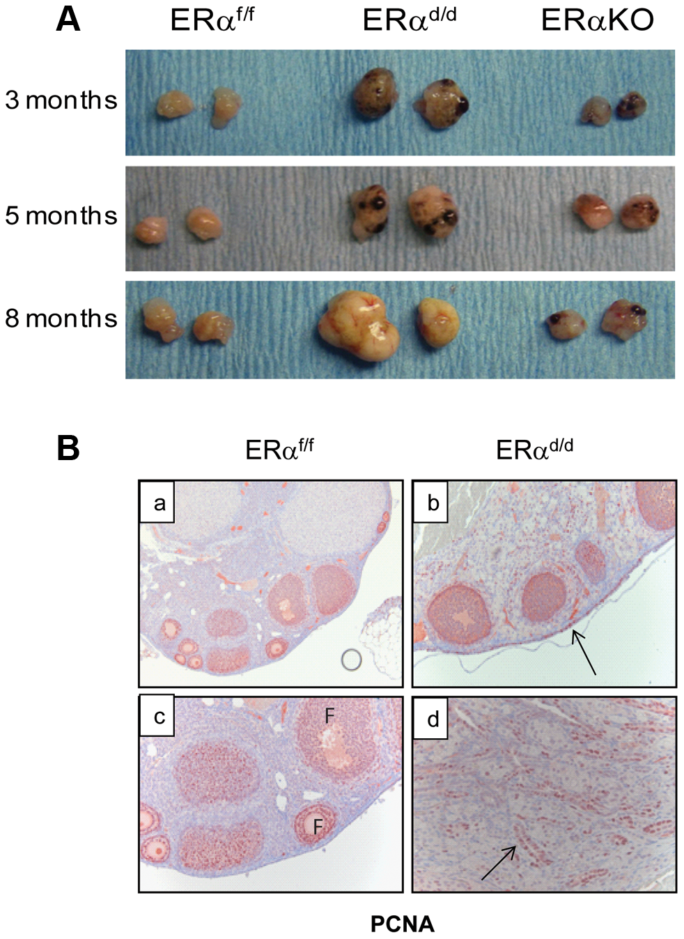 The ERα<sup>d/d</sup> mice form proliferative ovarian tumors.