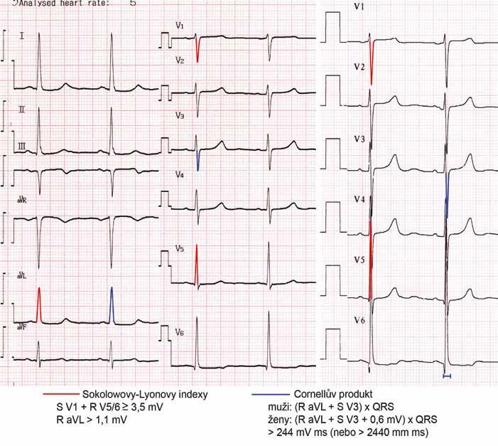 Obraz hypertrofie levé komory na EKG. Pro hypertrofii LK svědčí Sokolowovy-Lyonovy indexy (součet hloubky kmitu S ve svodu V1 a výšky R ve V5 nebo V6 je zde 4,1 mV, velikost kmitu R ve svodu aVL 1,2 mV) i Cornellův produkt ( je 270 mV msec). Lze si povšimnout, že na prvním EKG byla v končetinových svodech přístrojem automaticky zvolena nižší voltáž 5 mm/mV, záznam z hrudních svodů na dalším EKG vpravo je natočen se standardní voltáží 10 mm/mV.
