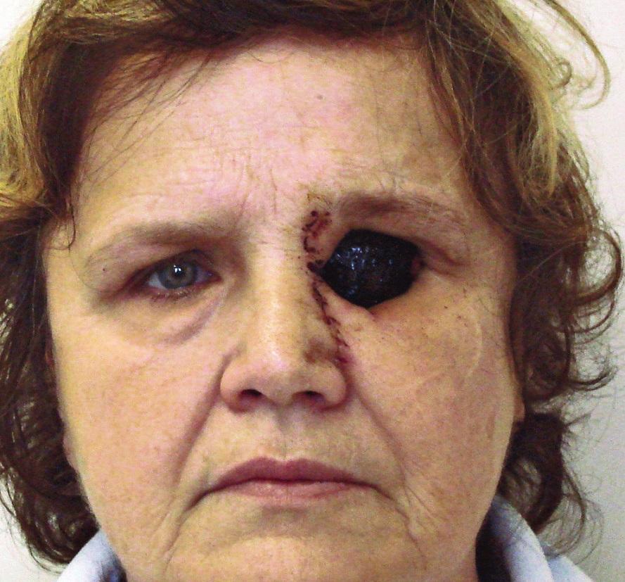 Pacientka po operaci s ponechanou volnou trepanační dutinou, trepanační dutina ponechána ke spontánnímu přegranulování.