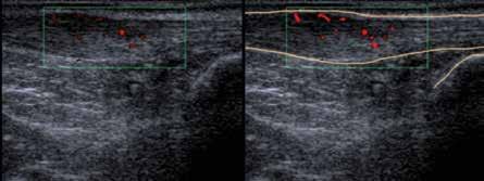 Ultrasonografický obraz vřetenovitého rozšíření Achillovy šlachy s průkazem pozitivního power-dopplerovského mapování při obrazu entezitidy Achillovy šlachy