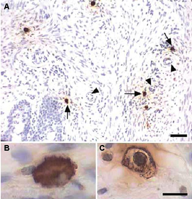 Imunohistochemická detekce žírných buněk v děložním krčku potkana: A – pozitivně značené buňky (šipky) 12. den těhotenství lokalizované v okolí cév (trojúhelníky), B – naplněné buňky bez známek degranulace, C – degranulované buňky s vyprázdněnými částmi cytoplazmy (Bosquiazzo et al. Reproduction 2007; 133: 1045–1055. Reproduced by permission.)