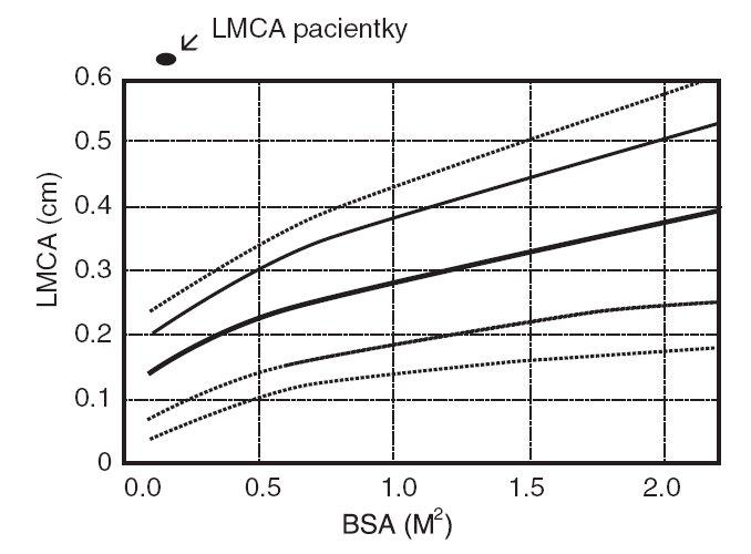 Šíře hlavního kmene levé koronární arterie (LMCA) vztažená na povrch těla (BSA). Fig. 2. Range of the main stem of the left coronary artery (LMCA) with relation to body (BSA).
