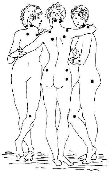 Lokalizace 18 definovaných bolestivých bodů u fibromyalgie podle klasifikačních kritérií American College of Rheumatology (Wolfe et al., 1990; podle Pavelka K. et al (2003), obrázek použit se svolením hlavního autora)
