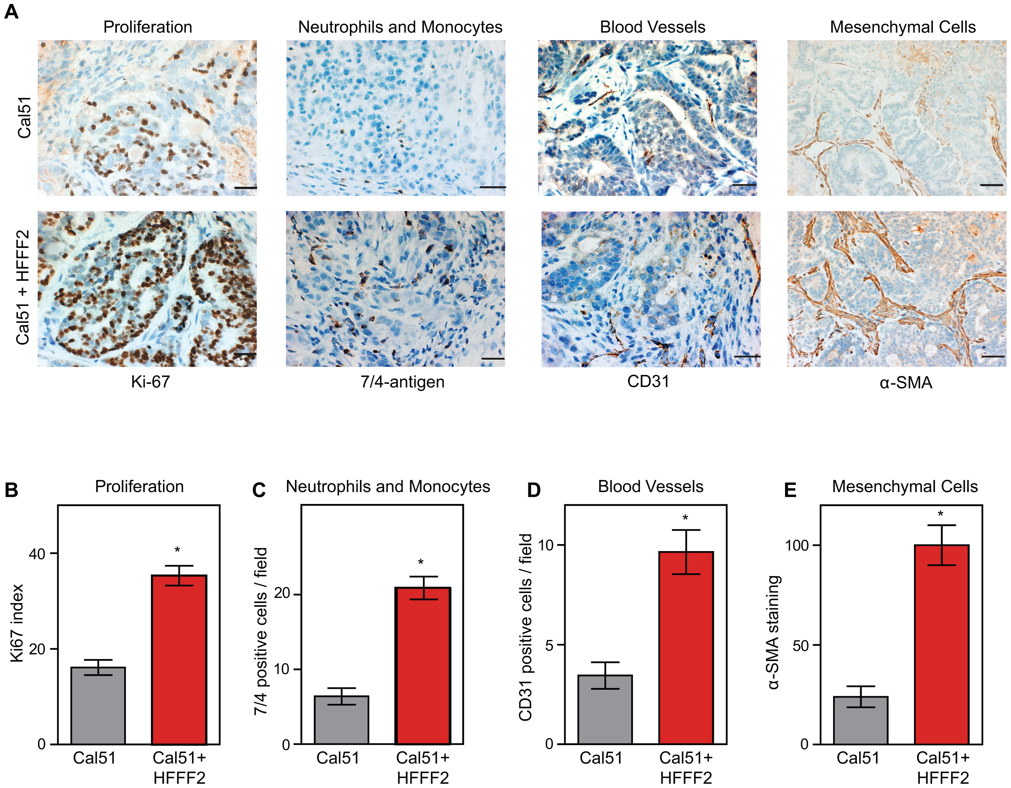 Tumor-supportive fibroblasts have profound effects on the composition of the tumor microenvironment.