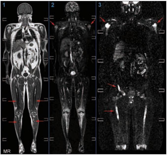 Celotělové vyšetření metodou magnetické rezonance, zobrazení v koronární rovině  (1) T1 vážená sekvence: Patrný je abnormálně snížený signál z kostní dřeně s maximem v oblasti obou femorů a tibií oboustranně. Nehomogenity jsou přítomné i v proximálních metafýzách obou humerů. Jedná se o obraz kumulace abnormálních histiocytů, které tak nahrazují normální tukovou kostní dřeň a působí snížení signálu v T1 obrazech.  (2) STIR zobrazení (typ saturace tukové tkáně): Při saturaci signálu z tukové tkáně dobře vyniká abnormální signál ve výše popsaných oblastech, a to velmi dobře i v obou humerech. I v tomto případě se jedná o přímé zobrazení nakumulovaných histiocytů, jejichž vyšší signál je dobře diferencovatelný od normální kostní dřeně.  (3) DWIBS zobrazení (difuzně vážené zobrazení s potlačením tělového signálu): Prokazatelná je restrikce molekulární difúze, která svědčí pro patologickou infiltraci kostní dřeně ve výše uvedených oblastech. Restrikce difúze se projeví vyšším signálem, tedy světlými okrsky.