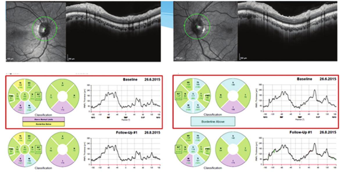 Měření tloušťky vrstvy nervových vláken sítnice (RNFL) na optické koherenční tomografii Heidelberg Spectralis dokumentující praktickou normalizaci tloušťky RNFL oboustranně