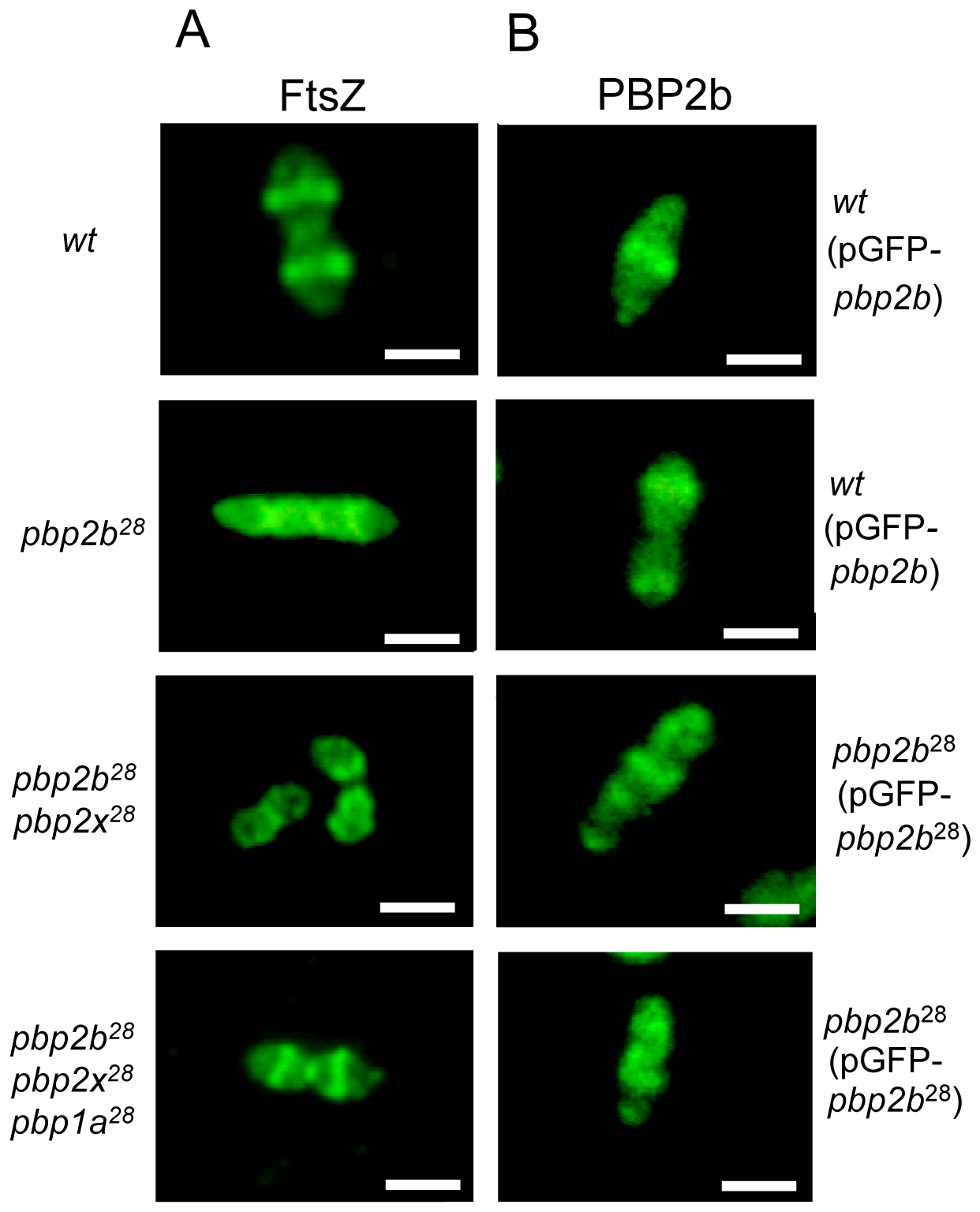 Protein localization in wild-type and <i>pbp</i> mutants by fluorescence microscopy.