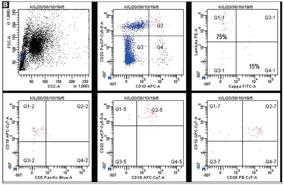 B. <em>Aspirát kostní dřeně, staging high-grade folikulárního lymfomu.</em> Aspirát kostní dřeně odebraný v odběrové zkumavce s EDTA byl naznačen komerčně dodávanými fluorescenčními protilátkami (kappa FITC / lambda PE / CD20 PerCPCy5.5 / CD38 PC7 / CD10 APC / CD19 APCCy7 / CD5 PB). Cytometrická analýza prokázala minoritní klonální populaci malých lymfocytů (buňky označené červeně) s fenotypem CD19+ CD20+ lambda+ CD10+ CD5- CD38+ (0,5 % z celku). Nádorové buňky byly v rámci stagingu hledány cíleně, což bylo možné díky znalosti jejich imunofenotypu stanoveném při cytometrickém vyšetření primárního nádoru. Tím lze zvýšit citlivost metody. Cytometrický nález prokázal infiltraci kostní dřeně folikulárním lymfomem.