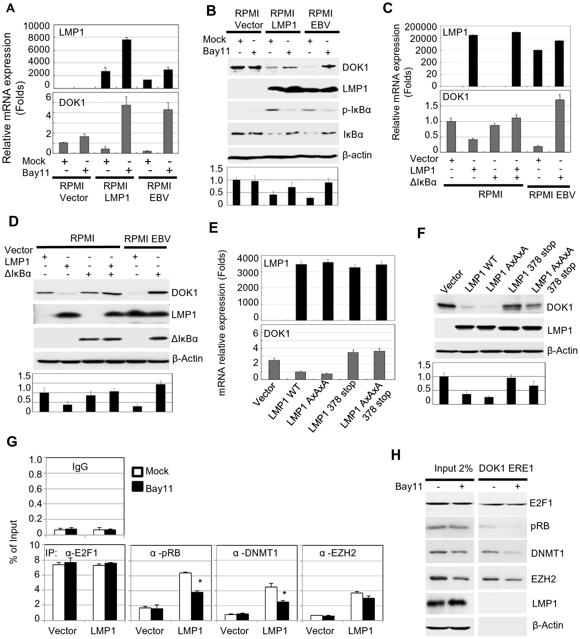 LMP1-mediated NF-κB activation is required for EBV-related <i>DOK1</i> down-regulation.