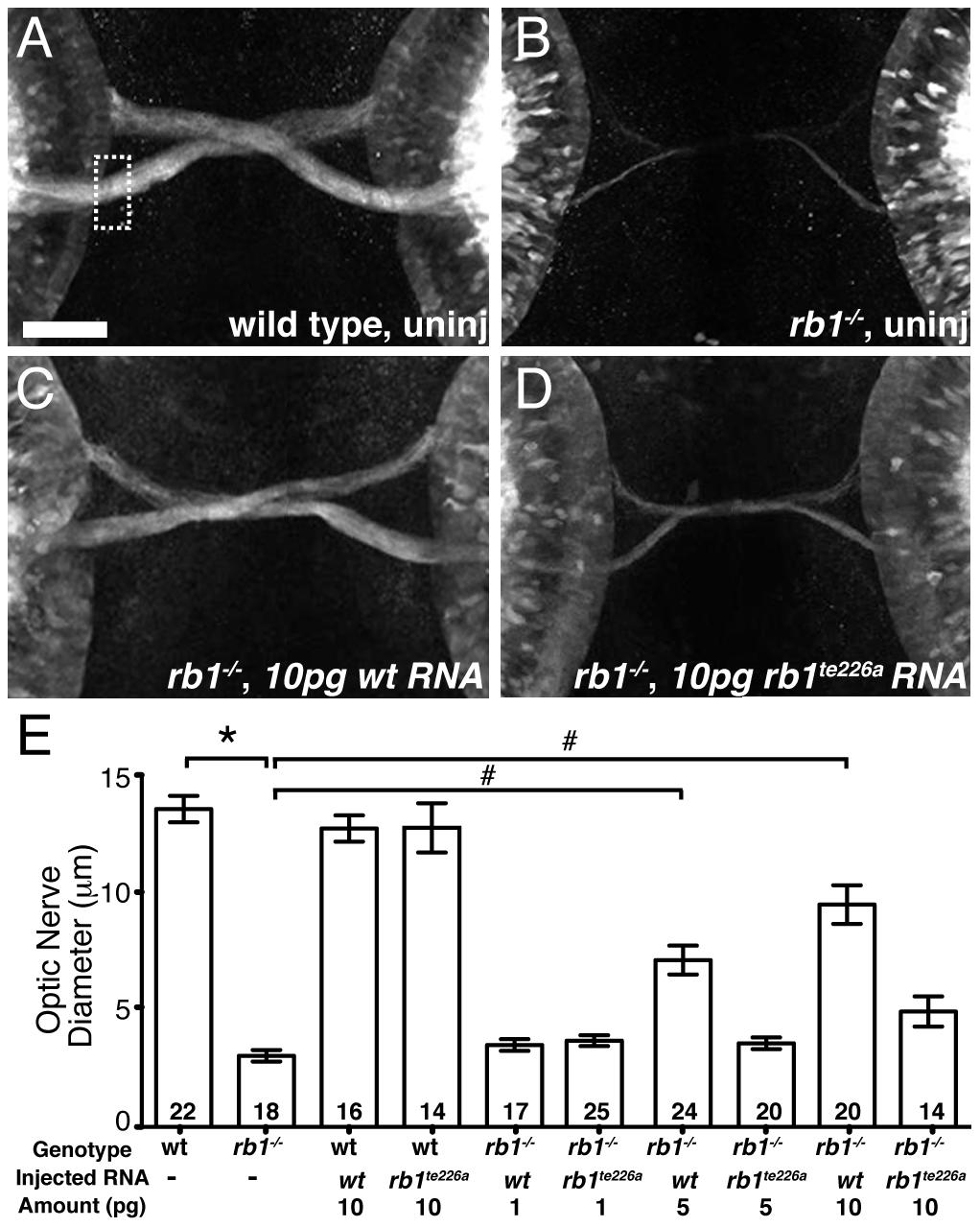 <i>rb1</i> mRNA overexpression rescues optic nerve hypoplasia in <i>rb1<sup>te226</sup></i> mutants.