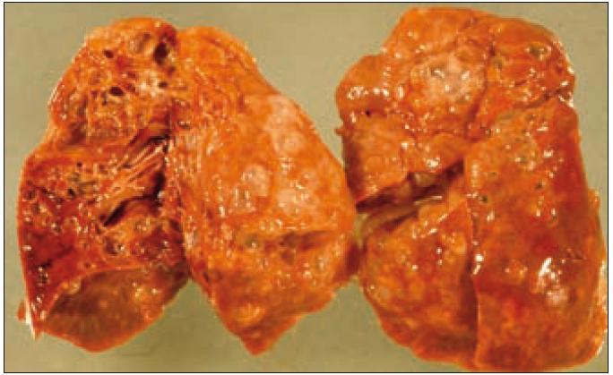 Ložiska nádorové infiltrace regredují, jizví se a vzniká výrazný paracikatrikózní emfyzém až do obrazu tzv. voštinovité plíce.