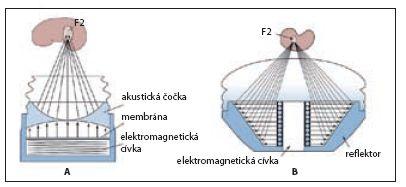 Elektromagnetický princip generování rázové vlny A – litotryptory Dornier a Siemens; B – litotryptory Storz Fig. 6 Electromagnetic shock wave generator A – Dornier, Siemens lithotripters; B – Storz lithotripter