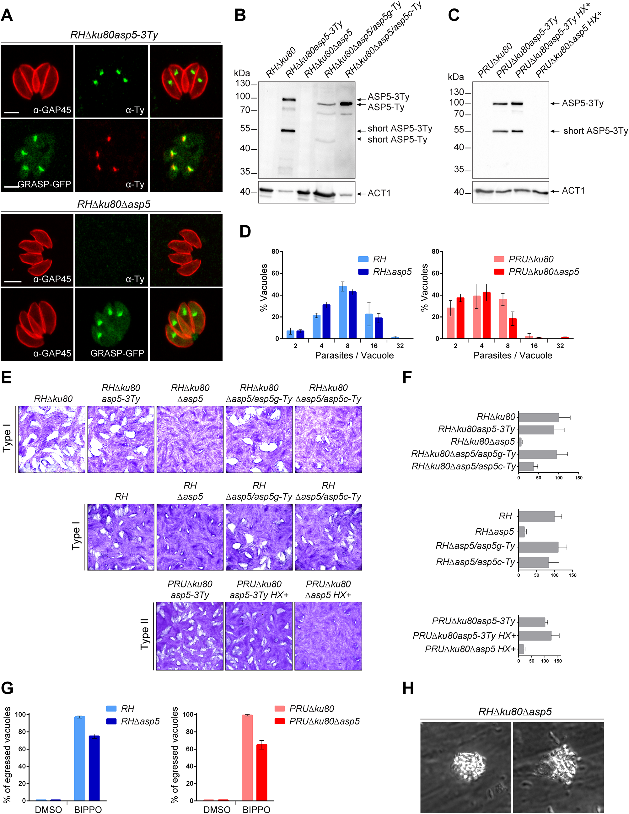 ASP5 is a dispensable Golgi-resident protein.
