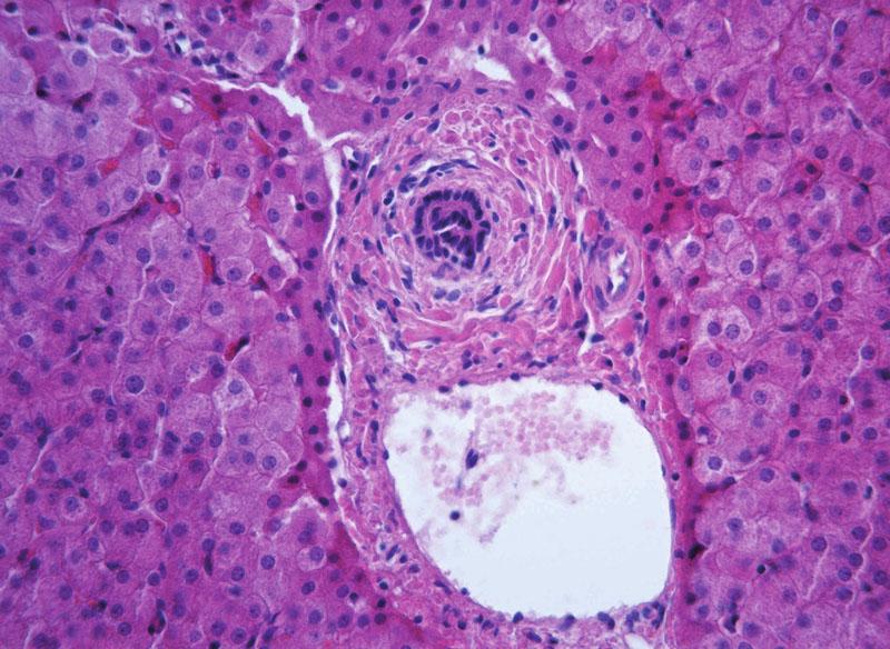 """Obraz periportální fibrózy biliárního typu s přítomností charakteristické koncentrické periduktální fibrózy (""""onion-skin"""") u 11leté dívky s primární sklerózující cholangitidou. Fig. 10. A picture of periportal fibrosis of biliary type with presence of characteristic concentric periductal fibrosis (""""onion-skin"""") in an 11-year old girl with primary sclerosing cholangitis."""