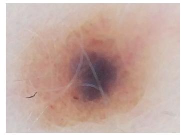 Obr. 4a. V centru hnědého névu lokalizovaný okrsek šedohnědé barvy