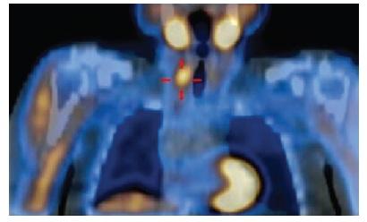 Hyperplastické příštítné tělísko vpravo dole, hodnoceno jako adenom příštítného tělíska, indikováno k operaci  Fig. 1: Hyperplastic parathyroid gland on the right at the bottom, classified as parathyroid adenoma, indicated for surgery