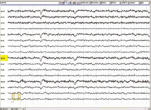 EEG v květnu 2007 (21 měsíců po ozáření Leksellovým gamma nožem).