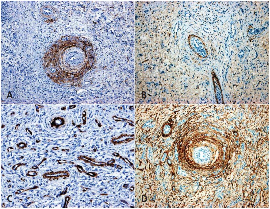 Fig. 2. Angiofibroma-like perineurioma. Immunohistochemical findings. A: EMA-positivity in perivascular cells and in rare cells of the stroma. Quite similar was expression of CD34. B: positivity for claudin-1. C: actin expression is limited to the pericytes. D: diffuse CD10 expression (SABC technique, magnifications x100).