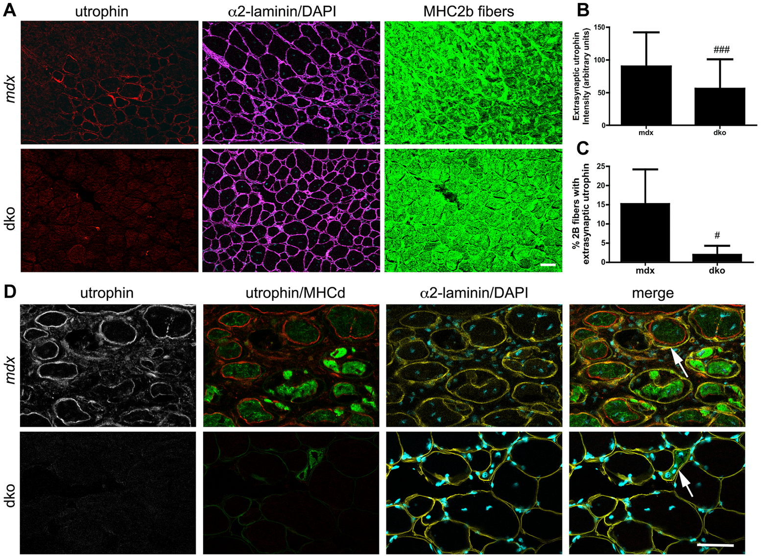 Utrophin expression was reduced on the extrasynaptic sarcolemma of dko fast 2b fibers.