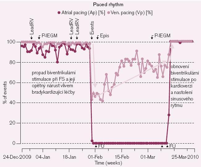 Ztráta synchronní stimulace biventrikulárního systému při setrvalém paroxyzmu FS (pokles síňové stimulace při FS na nulu při spontánní rychlé síňové aktivitě – 1 černý bod v grafu = záznam jednoho dne, zobrazen 0% podíl stimulace po dobu trvání arytmie) a její postupný nárůst bradykardizujícím efektem podávané medikace při saturaci amiodaronem (1 modrý bod v grafu = záznam jednoho dne, zobrazen narůstající podíl žádoucí komorové stimulace). K úplnému obnovení biventrikulární stimulace ovšem dochází až po provedení elektrické kardioverze s nastolením sinusového rytmu po 4týdenní účinné antikoagulaci.