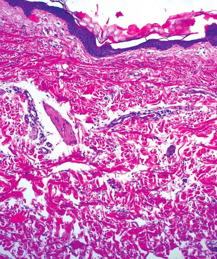Výrazná atrofie epidermis (HE)