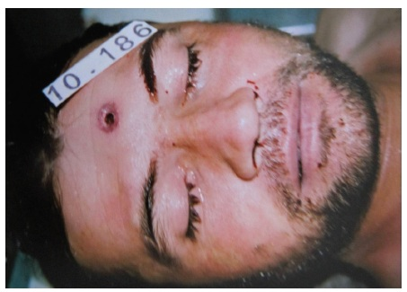 Figure 1. Circular skin wound