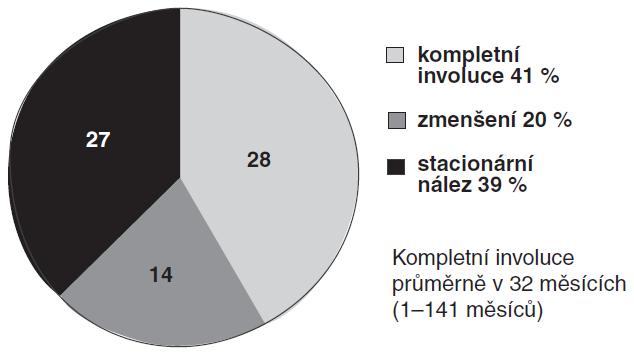 Průběh onemocnění u 69 dětí (86 %) s MCDK při konzervativní léčbě.
