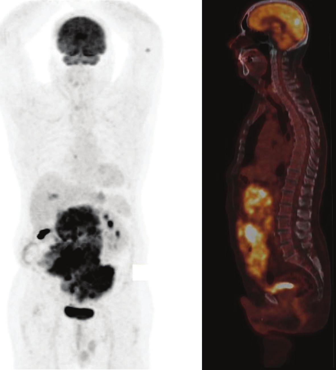 Obr. 3a. PET/CT s FDG, iniciálne vyšetrenie: vľavo: objemná hypermetabolická abdominálna masa (SUVmax 15,3), lymfatická uzlina parasternálne vpravo a ložisko v kostnej dreni ľavého humeru distálne.