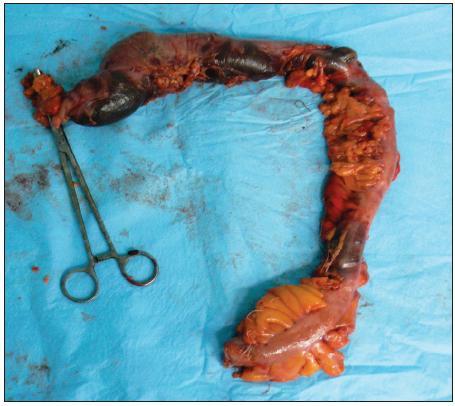 Resekát čreva s ložiskami nekróz Fig. 2. Resected part of large bowel with visible transmural necrosis