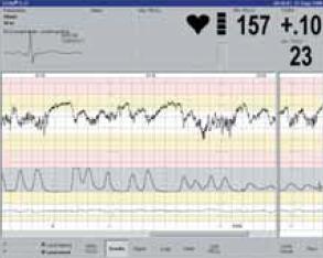 Monitor ST-analyzátoru.