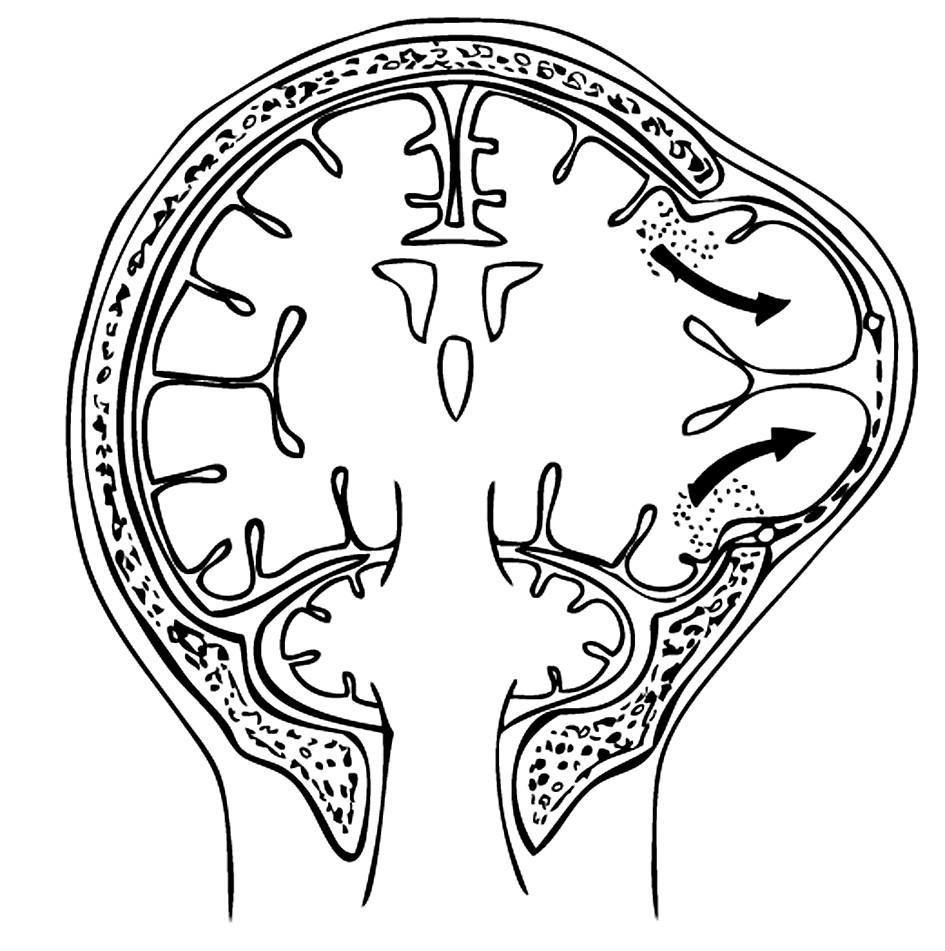 Malý rozsah dekompresivní kraniotomie nedostatečně uvolní edematózní hemisféru a způsobí výhřez a poškození mozkové tkáně o okraje dekomprese (mushroom- like herniation) Pic. 10. Small extent of the decompression craniotomy procedure releases the edematous hemisphere insufficiently and results in herniation and injury to the cerebral tissue by the decompression site edges (mushroom-like herniation)