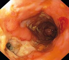 Endoskopický pohled do anorektálního přechodu s hlubokým vředem a ústím píštěle.