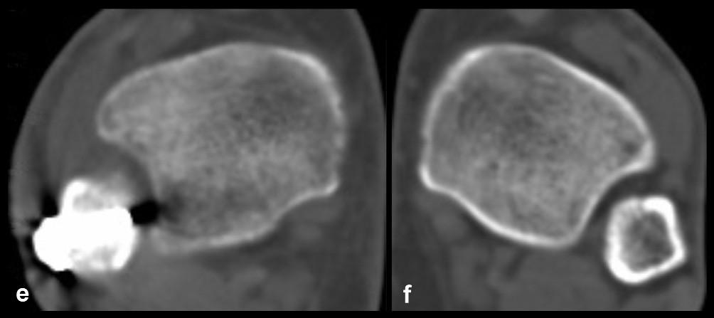 Neanatomická rekonstrukce fibuly jako příčina její malrepozice do incisury fibuly a, b – rtg snímky ukazující nízkou zlomeninu fibuly typu C, rupturu deltového vazu, subluxaci talu a odlomení malého fragmentu zadní hrany tibie, c, d – pooperační rtg s jasně patrnou angulací distální fibuly a rozšířením Chaputovy linie, e, f – srovnávací CT řezy poraněného a intaktního hlezna s dorzálně subluxovanou fibulou