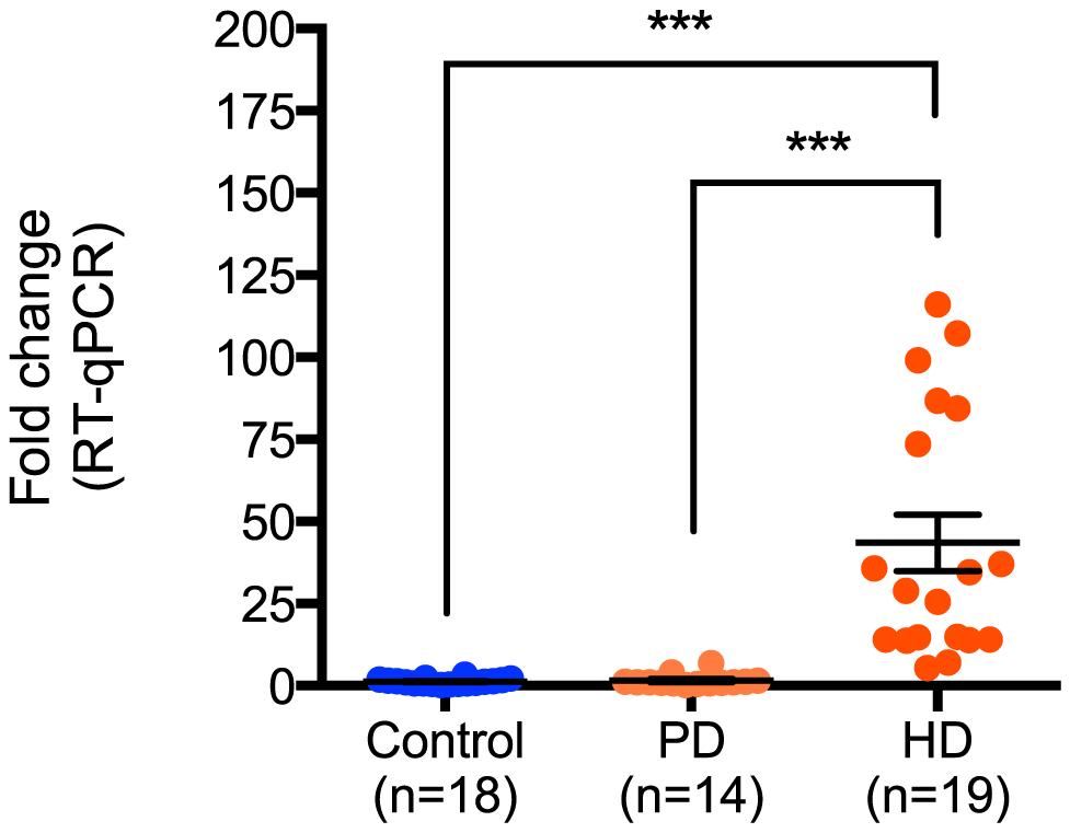 miR-10b-5p expression in control, Parkinson's disease and Huntington's disease prefrontal cortex.