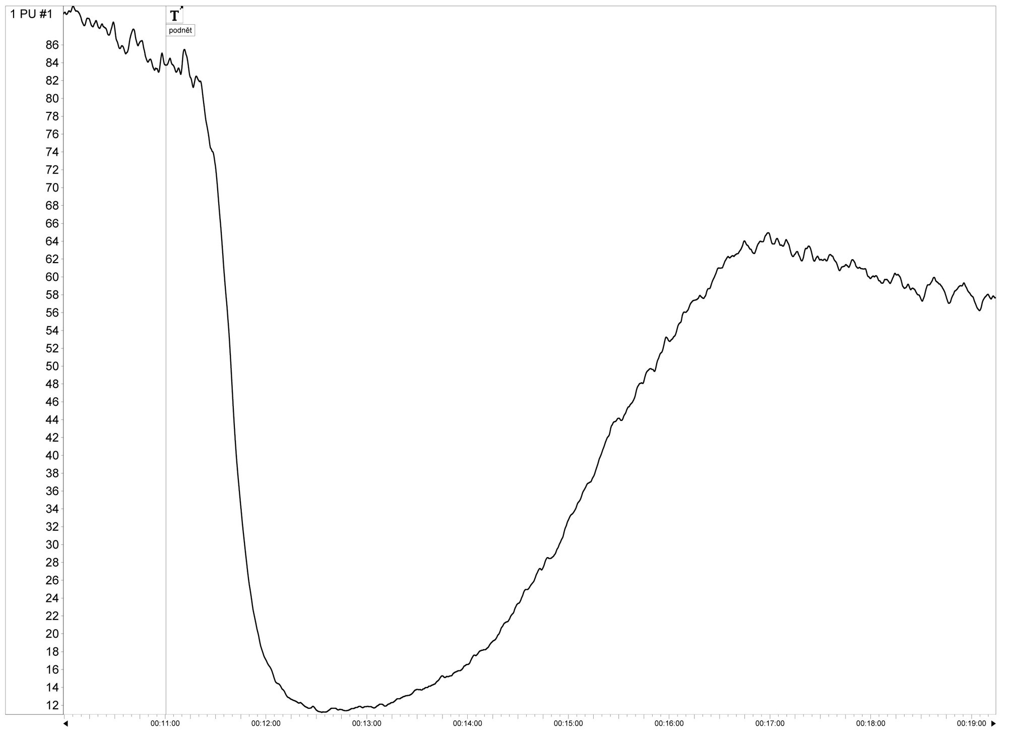 "Fig. 2. Example of the signal obtained by the laser-Doppler flowmeter. The marker ""T'"" represents ""t=0"" (time when the pedicle is bathed in blood). The graph shows the rapid decline signal amplitude (perfusion) caused by vasospasm"