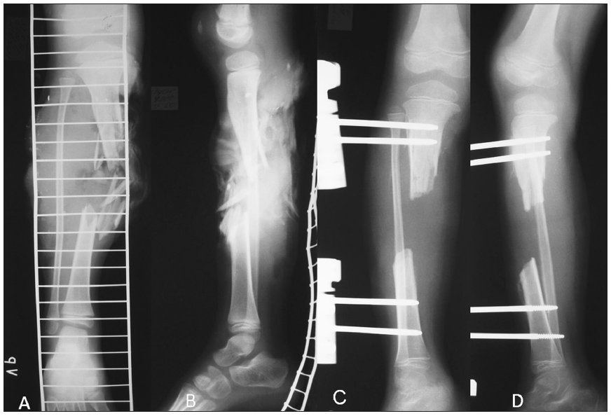 a. Tibial shaft fracture – PA view b. Tibial shaft fracture – lateral view c. Tibial defect after debridement and stabilization by unilateral external fixator – PA view d. Tibial defect after debridement and stabilization by unilateral external fixator – lateral view