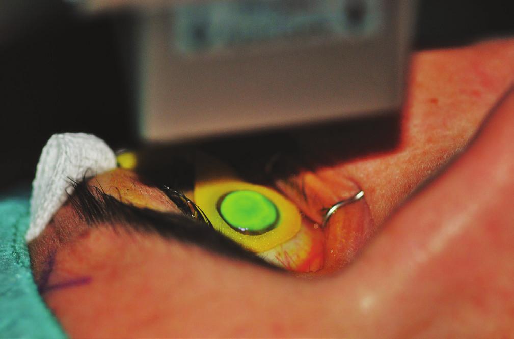 Průběh ozáření rohovky nasycené riboflavinem UVA zářením