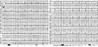 Normální korigovaný QT interval po vysazení medikace a normalizaci vnitřního prostředí.