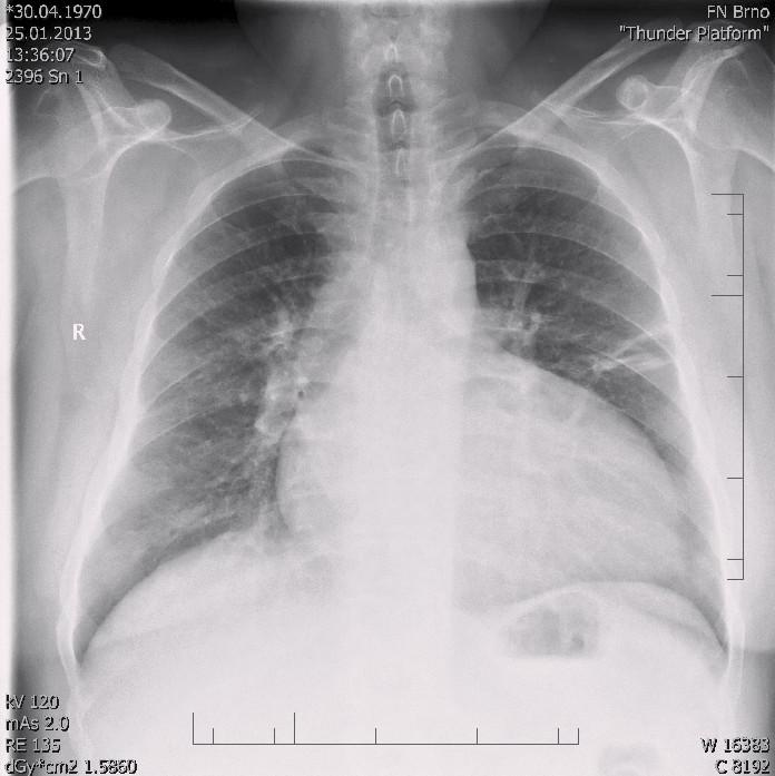 RTG snímek s dilatací srdečního stínu oběma směry s predilekcí doleva, kardiothorakální index 0,61 při přijetí v roce 2013.