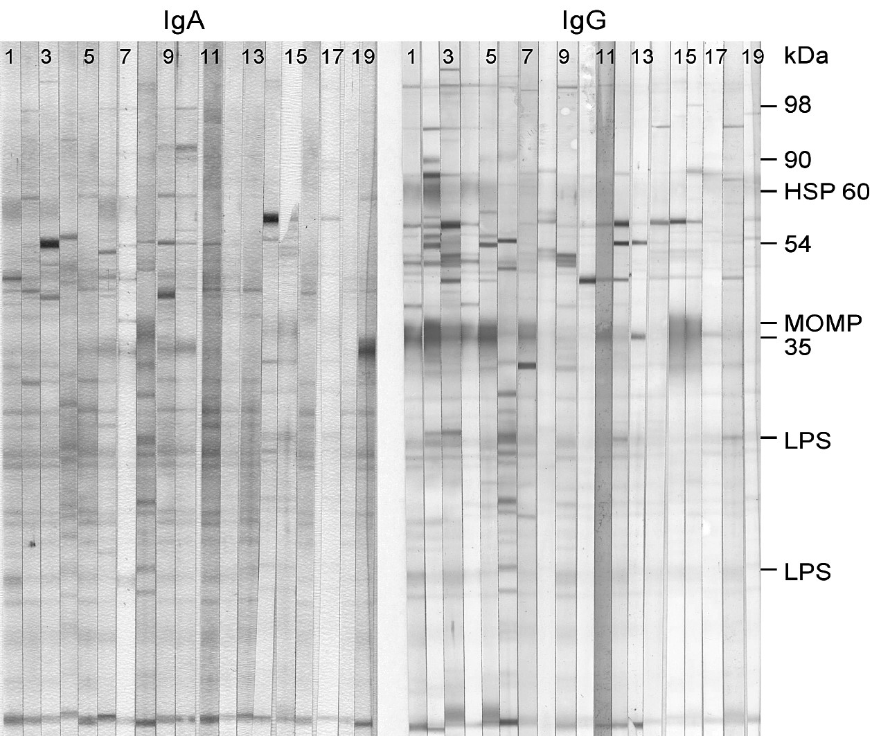 Fig. 1. Typical IB protein profiles with C. pneumoniae IgA and IgG, respectively, in sera of CVD patients (lanes No 1-16 correspond to the sera of cardiovascular patients, lanes 17-19 to control sera).