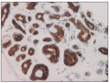 C-kit 3+ pozitivní adenoidně cystický karcinom (hematoxylin-eosin, zv. 200x).