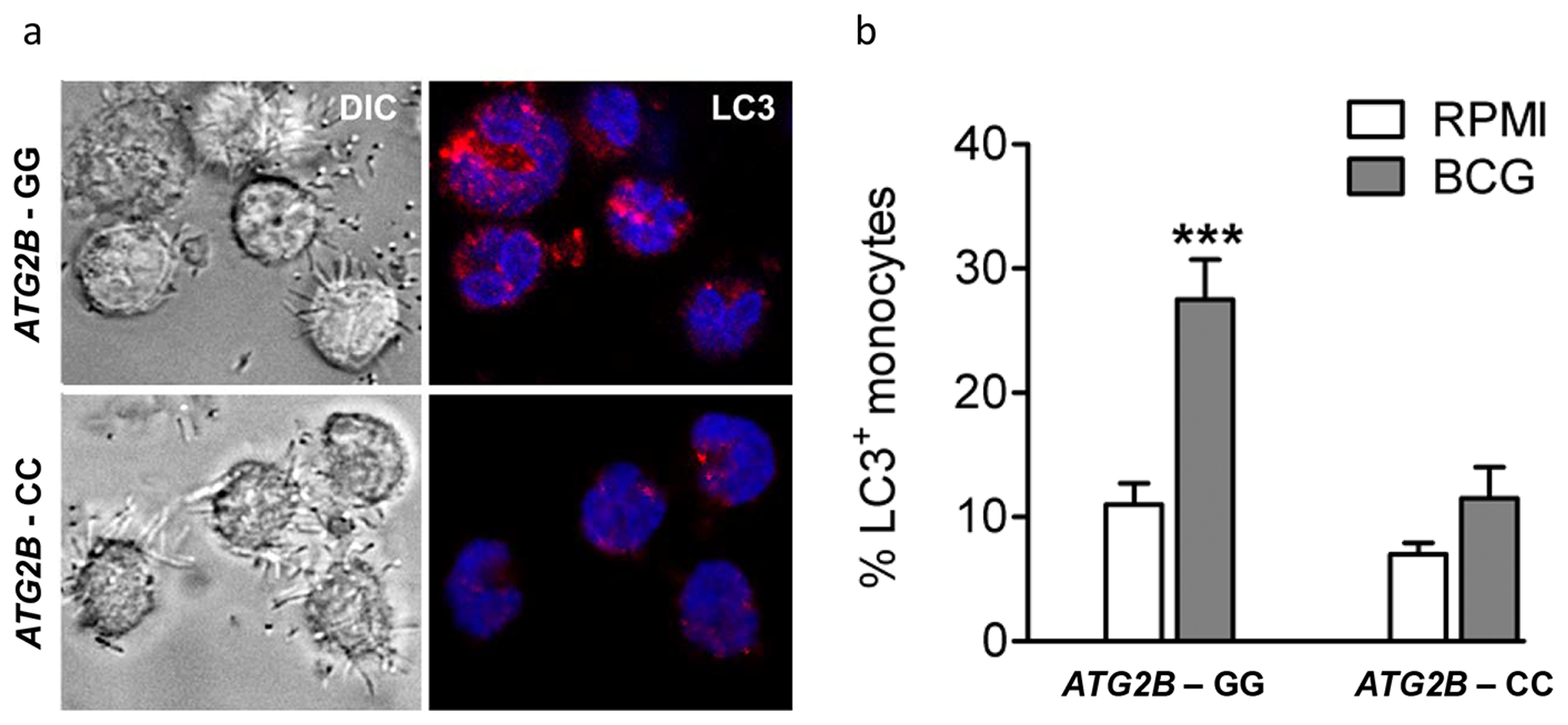 Autophagy affected by SNP in ATG2B.